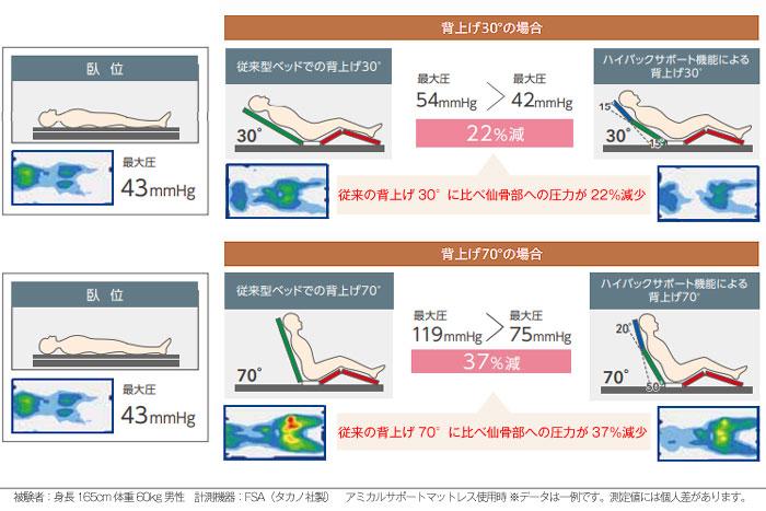 ポジショニング介護ベッド 褥瘡(床ずれ)リスクの低減